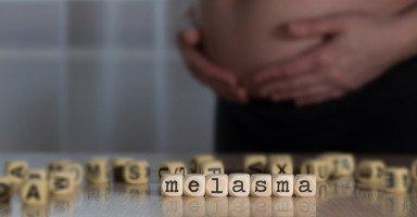 علاج كلف الحمل بالأدوية والطرق الطبيعية