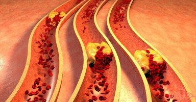أعراض الجلطة الدموية Blood Clot بأنواعها