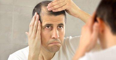 علاج تساقط الشعر عند الرجال وأسباب الصلع