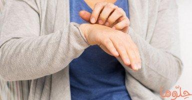 أعراض وعلاج مرض الجرب وطرق الوقاية من الجرب