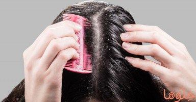 أسباب قشرة الرأس وطرق علاجها
