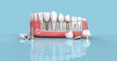أنواع تركيبات الأسنان الثابتة والمتحركة