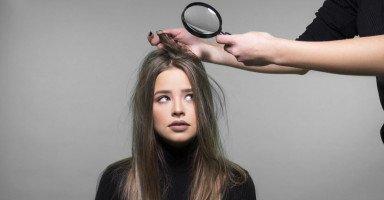 علاج قشرة الشعر وأسباب ظهور القشرة