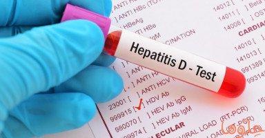 أعراض التهاب الكبد من النمط D