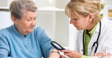 أنماط وأعراض سرطان الجلد وأسبابه