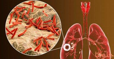 أعراض وعلاج مرض السل وطرق الوقاية من السل