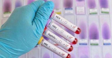 الأمراض المنقولة جنسياً والوقاية من الأمراض التناسلية