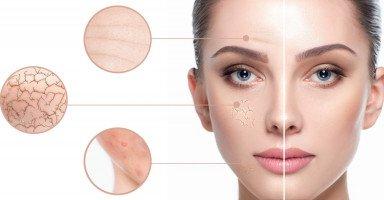 العناية ببشرة الجسم الجافة والوجه الجاف بطرق طبيعية