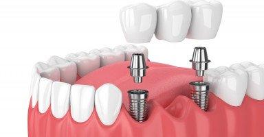 عملية زراعة الأسنان المخاطر والتكاليف