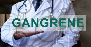 أسباب الغرغرينا وطرق علاج مرض الغرغرينا
