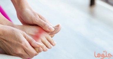 أعراض وعلاج مرض النقرس وأسباب النقرس
