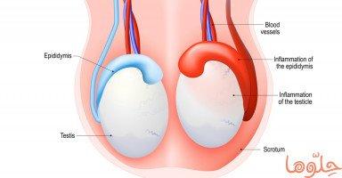 أعراض وعلاج التهاب البربخ (Epididymitis)