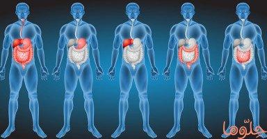 علاج الأمعاء المسدودة وطرق تجنب انسداد الأمعاء
