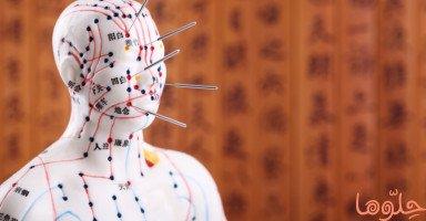 فوائد الوخز بالإبر الصينية ومخاطر العلاج بالإبر الصينية