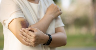 أسباب ظهور الكدمات في الجسم وهل هي خطيرة؟
