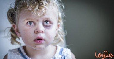 تأثير العنف اللفظي والجسدي على الأطفال