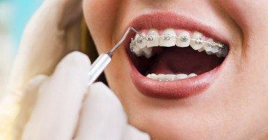 معلومات مهمة عن تقويم الأسنان الثابت والمتحرك