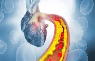 الكولسترول الضار والنافع وأعراض ارتفاع الكوليسترول