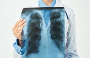 ما هي أسباب ألم الصدر؟ وكيف يتم تشخصيص آلام الصدر؟