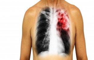 أسباب وأعراض التهاب الرئة pneumonia