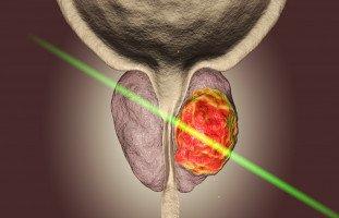 علاج البروستات المتضخمة بتقنية جرين لايت ليزر Green Light Laser