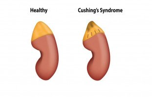 أعراض وعلاج متلازمة كوشينج
