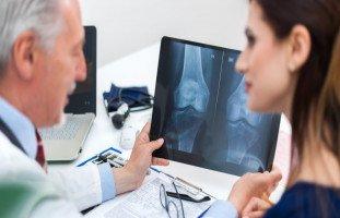 أسباب وأعراض هشاشة العظام وطرق علاج ترقق العظم