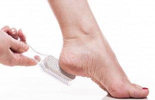 تشققات القدمين وطرق علاجها الطبيعية