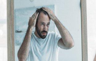 علاج الشعر الخفيف عند الرجال بالأعشاب والزيوت