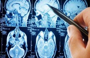 تقنية جديدة تحدث ثورة في علاج السرطان