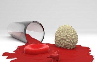الصفيحات الدموية وأسباب نقص الصفيحات أو زيادتها