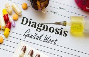علاج الثالول التناسلي عند النساء والرجال وطرق الوقاية