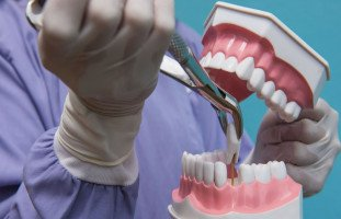 تفسير إصلاح الأسنان في المنام وخلع الضرس في الحلم