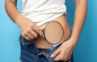 طرق علاج علامات تمدد الجلد بسبب السمنة أو الحمل