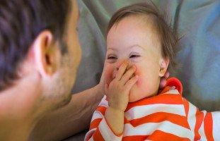 متلازمة داون والمخاطر الصحية المرتبطة بها