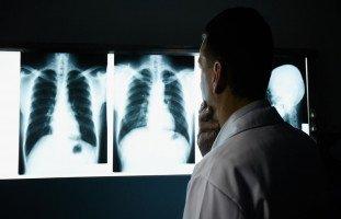 أعراض وأسباب سرطان الرئة (Lung Cancer) وطرق العلاج