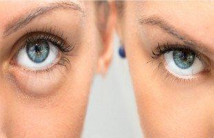 أشهر 10 أسباب لانتفاخ تحت العين وطرق علاجها