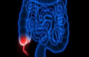 أعراض وعلامات التهاب الزائدة