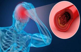 أعراض الجلطة الدماغية وآثارها