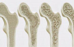 أكلات وتمارين تقوية العظام والوقاية من هشاشة العظم