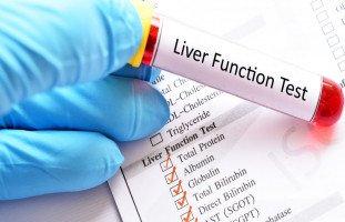 قراءة تحليل وظائف الكبد وطريقة إجراء فحوصات الكبد