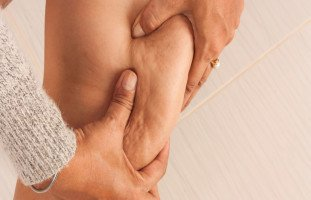 ما هو السيلوليت؟ أسباب السيلوليت وطرق علاجه