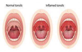 أعراض وعلاج التهاب اللوزتين