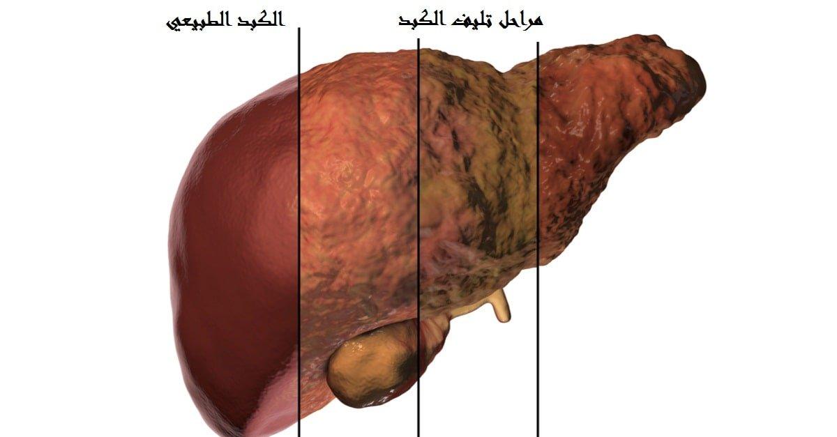 أسباب وأعراض تليف الكبد وعلاج تشم ع الكبد