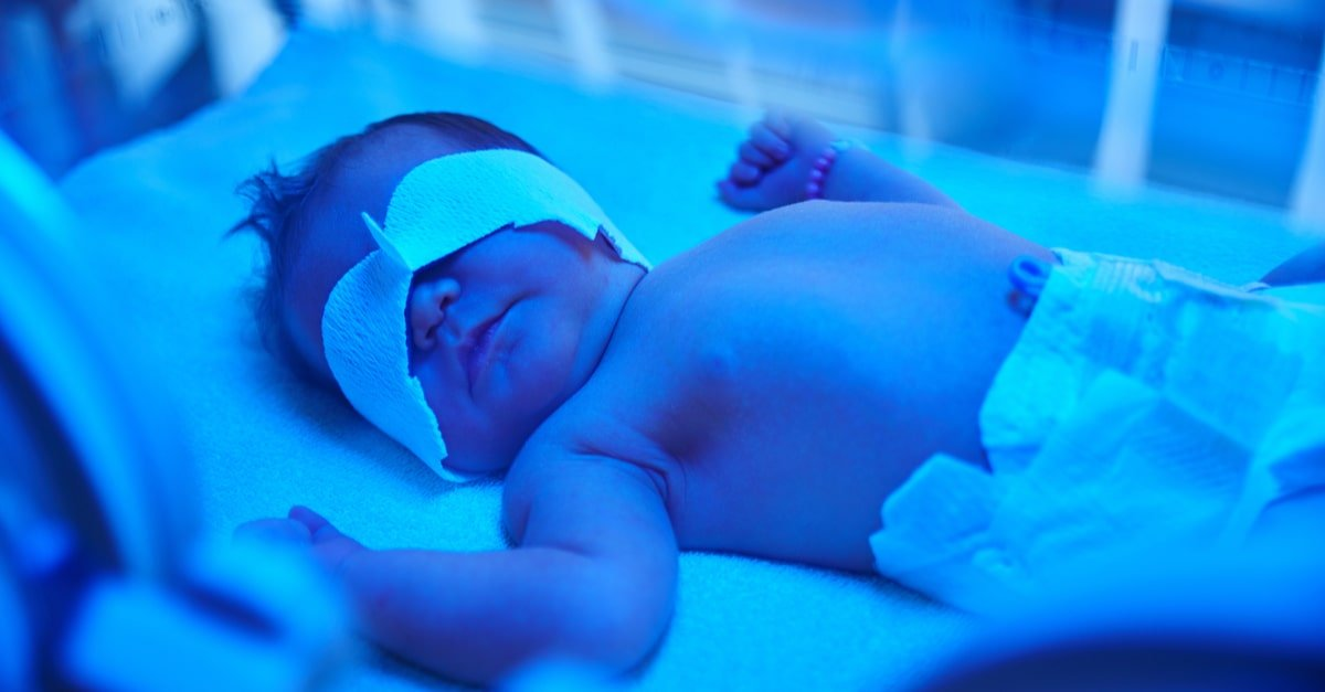 علاج الصفار عند الأطفال حديثي الولادة