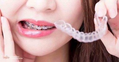 أهملت نفسي وبيتي وأطفالي بسبب شكل أسناني