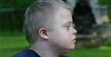 كيف أتعامل مع أخي المصاب بمتلازمة داون؟