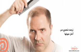 عملت عملية زراعة الشعر عشان خاطرها..